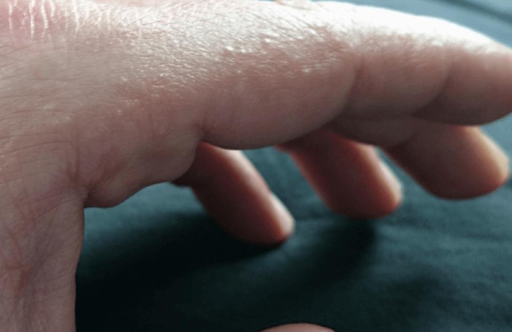 Kleine Bläschen an den Fingern?